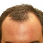 Perdita dei capelli giovanile