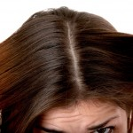 Perdita dei capelli:Forfora
