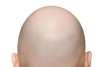 Correggere la calvizie con il trapianto capelli