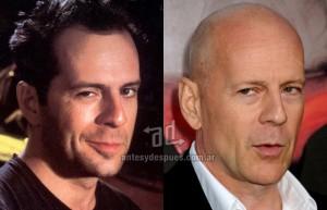 Bruce-Willis perdita dei capelli