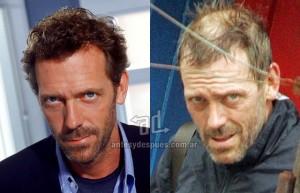 Hugh-Laurie perdita dei capelli