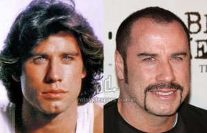 John-Travolta perdita dei capelli
