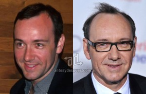 Kevin-Spacey perdita dei capelli