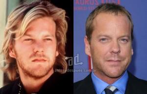 Kiefer-Sutherland perdita dei capelli