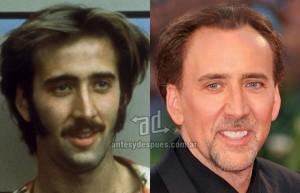 Nicolas-Cage perdita dei capelli