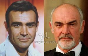 Sean-Connery perdita dei capelli