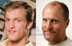 Woody-Harrelson perdita dei capelli