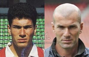 Zinedine-Zidane perdita dei capelli